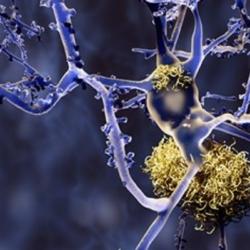 Notícia Capital: Alzheimer – Tratamento Com Aducanumab
